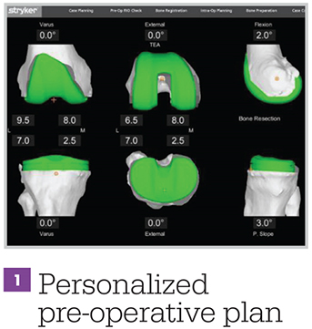 Infographic - Mako Technology - Personalized Pre-Operative Plan