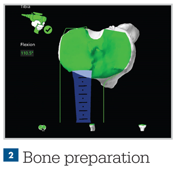 Infographic - Mako Technology - Bone Preperation